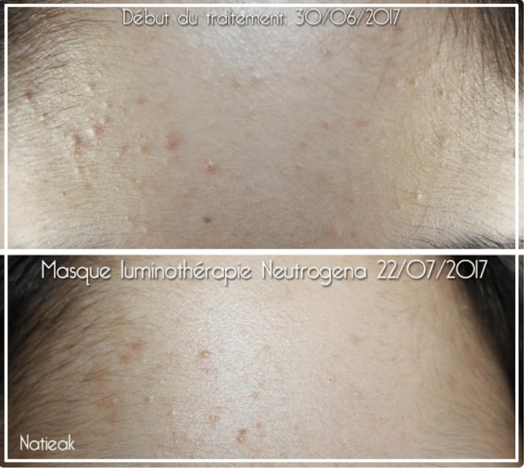 872e47a64f4 Témoignage en photo d une femme utilisant le masque Neutrogena. L avant et  après n est pas « exceptionnel » mais on peut voir une amélioration de la  netteté ...