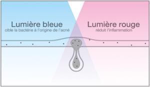 Fonctionnement masque luminothérapie acné