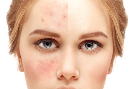 appareils-anti-acné